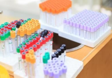 最新!已有10款新冠病毒检测试剂盒获批